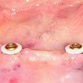Einbau von 2 Implantaten mit Druckknöpfen zur  Verbesserung des Halte seiner Totalprothese.