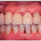 Provisorische Versorgung des Oberkiefers nach Extraktion in einem Seitenzahnbereich. Deutlich ist der Weichgewebs-Effekt zu den Zähnen im Seitenzahnbereich zu erkennen.