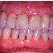 Die fertige Versorgung - mit stark individualisierten Zähnen kann man ein möglichst natürliches Ergebnis erzielen.