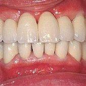 Die fertige Versorgung mit festsitzender Keramikbrücke. Die Zähne sind der Fuß der Patienten weiß und wenig individualisiert.